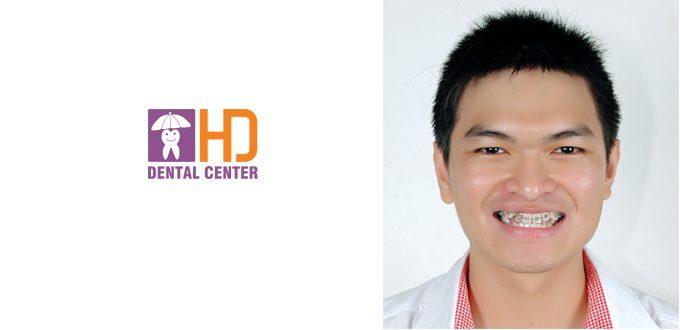Đình Trí – Bác sĩ Đa Khoa. Điều trị: Niềng răng, tẩy trắng răng
