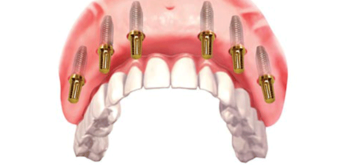 Implant for edentulous people