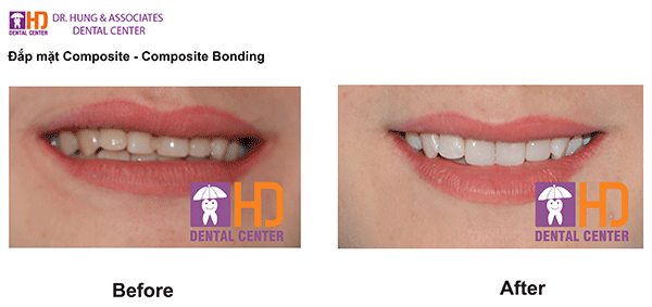 composite dr hung