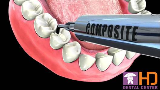 nha khoa uy tín - trám răng sâu