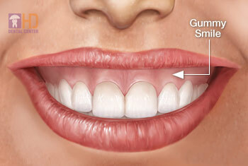 gummy-smile-drhung-dental