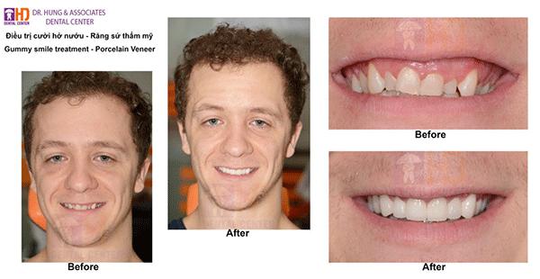 nha khoa uy tín - răng sứ