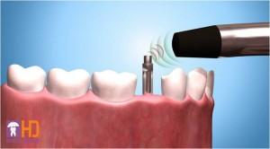 implant  Đặt Implant tức thì sau nhổ răng implant 1 300x166