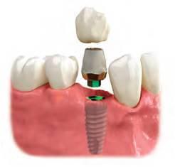 implant  Quy trình cấy ghép Implant implant