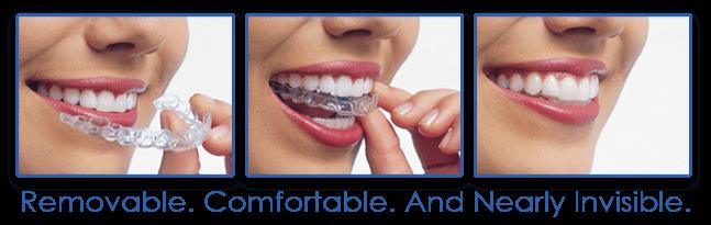 nha khoa uy tín - Niềng răng không mắc cài