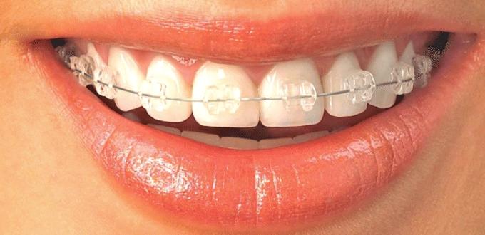 Do you need braces?
