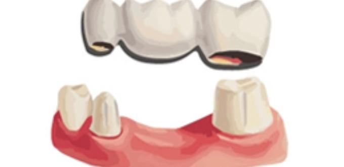 Răng sứ – Mão và Cầu răng