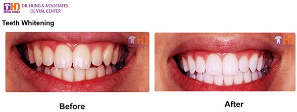 Tẩy Trắng Răng tại Nha Khoa Dr Hùng