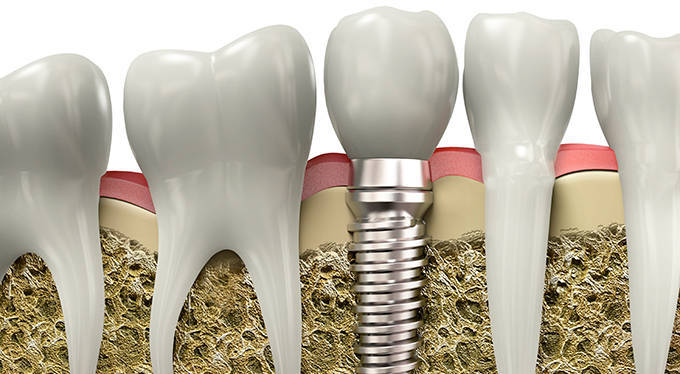 What is Implant?