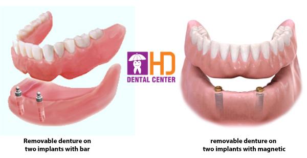 protese-dentaria-overdenture
