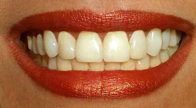 Kết quả hình ảnh cho Không có gì làm trầm trọng thêm hoặc ranh giới làm răng