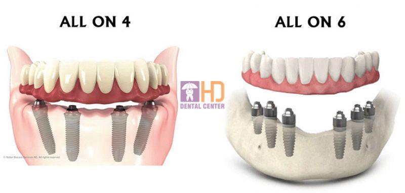 Hình ảnh minh họa cho All-on-4 và All-on-6