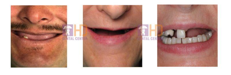 Trồng răng implant cho người mất toàn hàm theo kỹ thuật All-on-4/6.