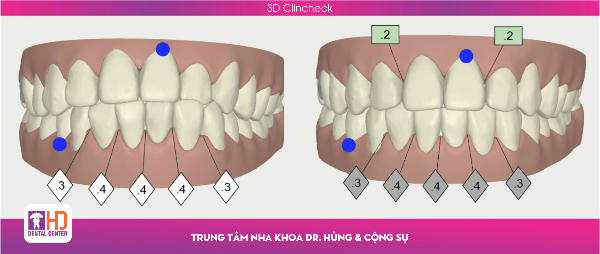 3dclincheck-nha-khoa-dr-hung