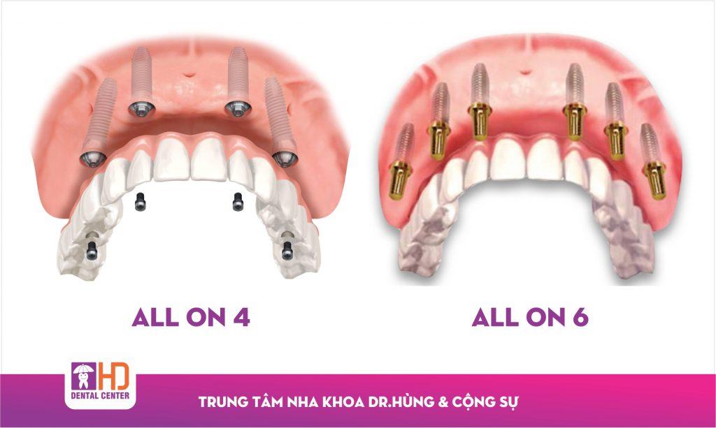 implant  IMPLANT NHA KHOA – GIẢI PHÁP TỐI ƯU CHO NGƯỜI MẤT RĂNG Implant 1024x613