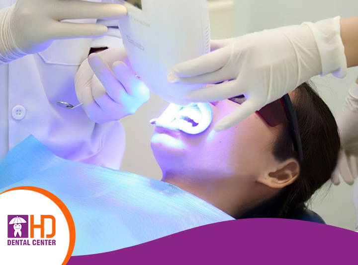 Tẩy trắng răng tại nha khoa uy tín