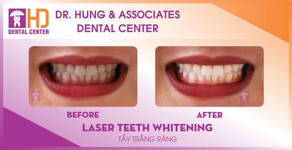 Tấy trắng răng - nha khoa uy tín