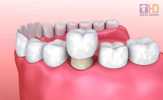 Hình minh họa mão răng sứ.