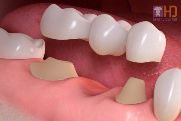 Hình minh họa Cầu răng sứ khi mất một răng bất kỳ