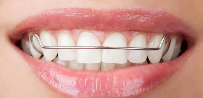 Hàm duy trì niềng răng