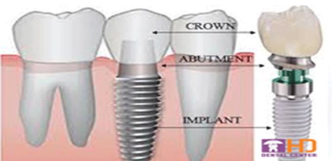 Hệ thống Implant sử dụng