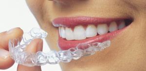 Invisalign – Niềng răng không mắc cài