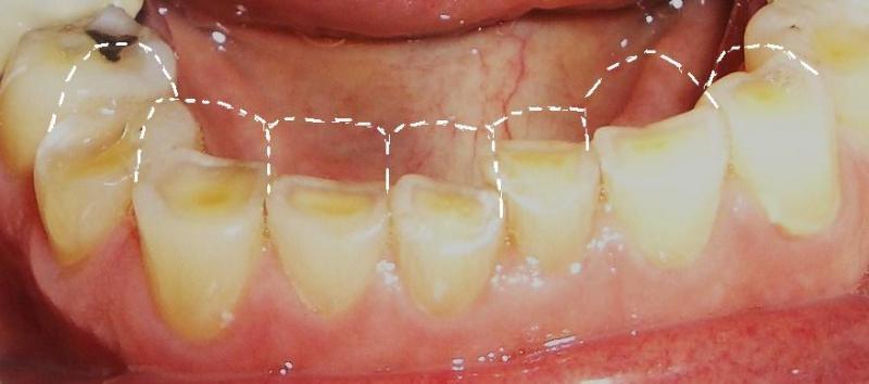 Bệnh nhân bị mòn răng nghiêm trọng do nghiến răng lúc ngủ