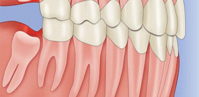 Nhổ răng khôn mọc lệch ngầm