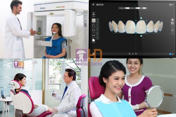 Quy trình bọc răng sứ thẩm mỹ chuẩn, chi tiết theo từng tỷ lệ và chọn màu sắc răng cẩn thận