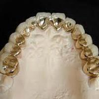 Răng sứ-kim loại quý