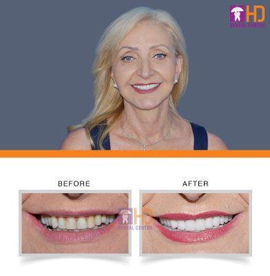 Khách hàng bọc răng sứ thẩm mỹ để thay đổi nụ cười bị nhiễm màu và dáng răng không đẹp