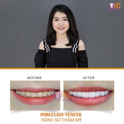 Khách hàng bọc răng sứ thẩm mỹ để thay đổi nụ cười không đều màu và dáng răng không đều