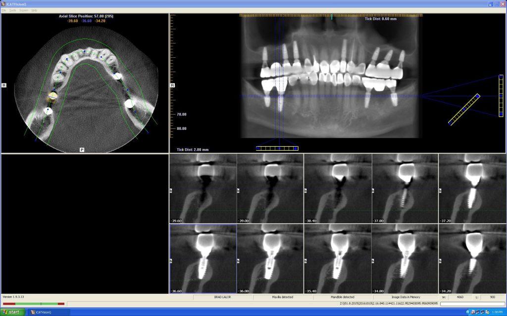Cone Beam CT 03 - nhakhoa dr hung