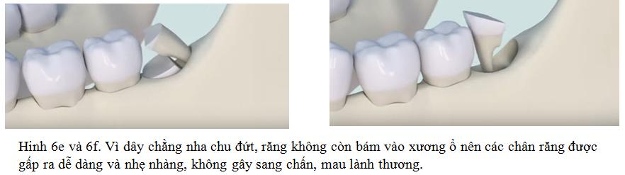 RANG KHON NHA KHOA DR HUNG 06