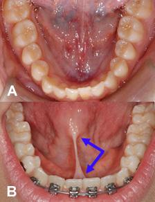 Frein-Lingual-frenum-orthodontiste-sherbrooke-093109-103085