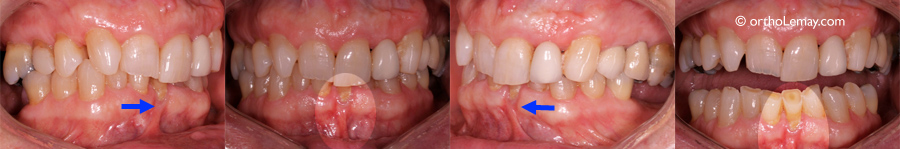 Frenum-pull-frein-recession-gingivale-orthodontie-536379-GH-661