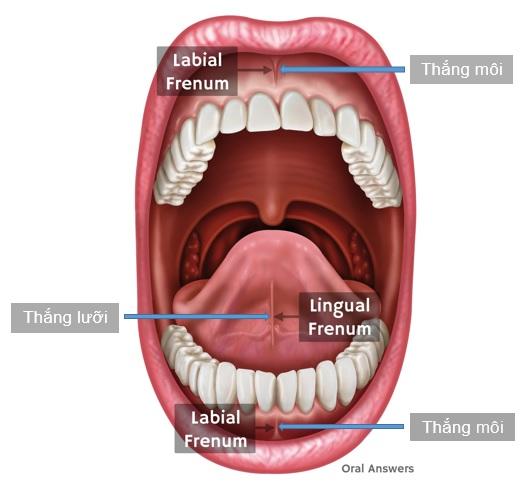 frenectomy_lingual_frenum_and_labial_frenum