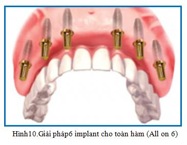giai phap mat rang toan ham 02  Mất răng toàn hàm đã lâu trồng Implant được không? giai phap mat rang toan ham 02