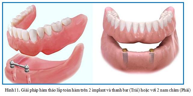 giai phap mat rang toan ham nha khoa dr hung 03  Mất răng toàn hàm đã lâu trồng Implant được không? giai phap mat rang toan ham nha khoa dr hung 03