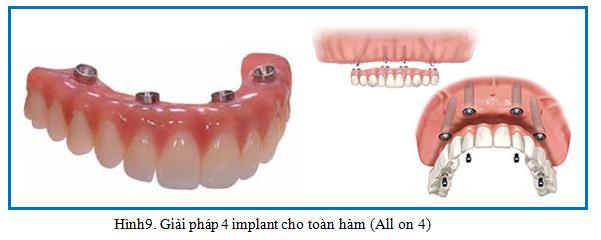 mat rang toan ham giai phap 1 nha khoa dr hung  Mất răng toàn hàm đã lâu trồng Implant được không? mat rang toan ham giai phap 1 nha khoa dr hung