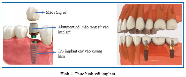 thời gian làm phục hình với implant dr hung 01