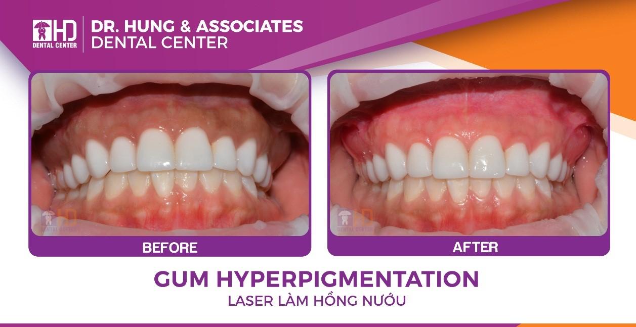 Kết quả trước sau khi làm hồng nướu răng với máy Laser LightWaker AT