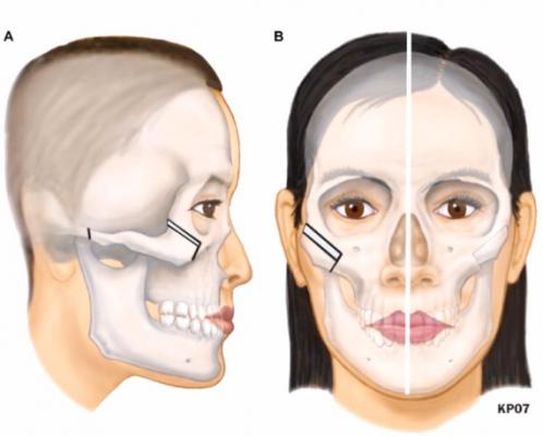 Quy trình chỉnh hình xương gò má (hạ gò má)