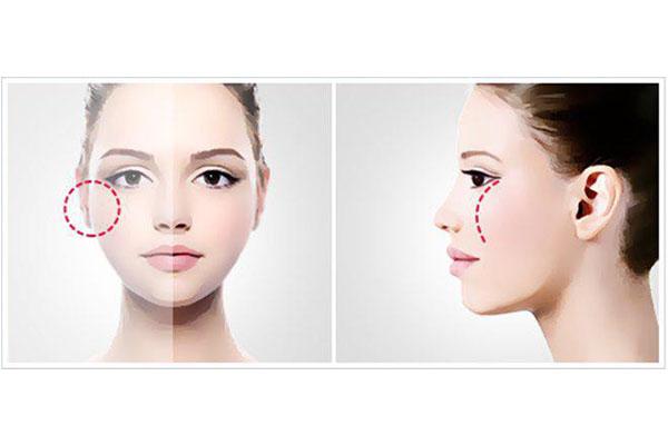 Quy trình phẫu thuật chỉnh hình hạ gò má