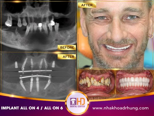 Nha khoa Implant tại Nha khoa Dr Hùng