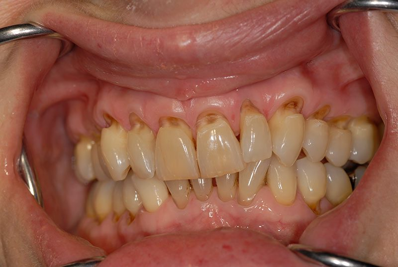 Ê buốt ở bệnh nhân bị mòn cổ và tuột nướu chân răng