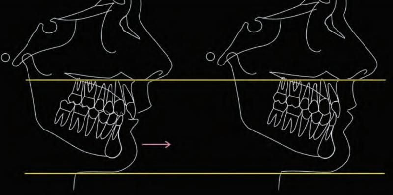 Ưu điểm của phẫu thuật chỉnh hàm hô