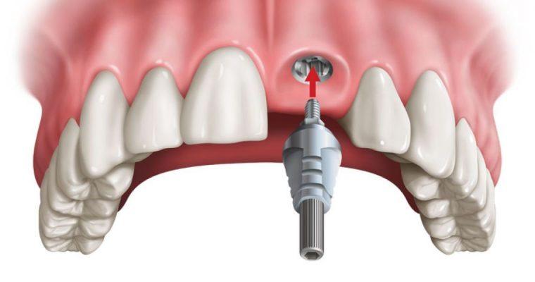 Dịch vụ cắm implant răng cửa chất lượng