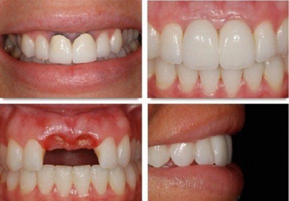 Lý do nên cắm implant răng cửa