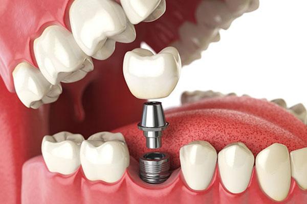 Kỹ thuật cấy ghép Implant có ưu nhược điểm gì?